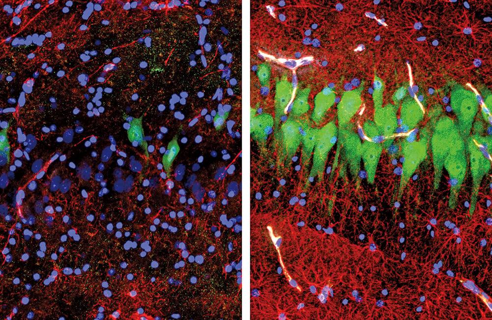 左圖為未經處理的腦組織,整體呈現黑暗顏色和沒有電訊號的狀態;右圖為處理後的腦組織,綠色的部份為顯著的神經活動。(Stefano D. Daniele & Zvonimir Vrselja/Yale School of Medicine)