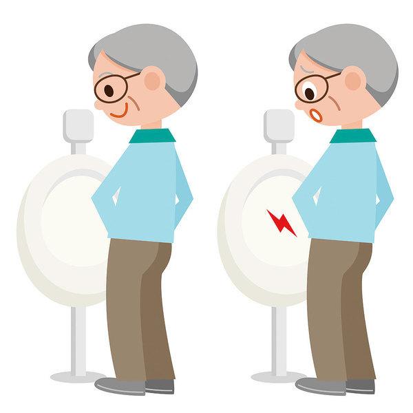 血尿、排尿不順 小心是攝護腺肥大引起
