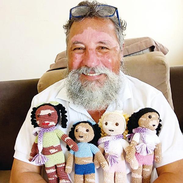 巴西爺爺手織「白化娃娃」 給患有此病的兒童