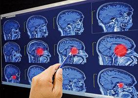 研究:AI診斷腦癌 表現跟醫師一樣準確