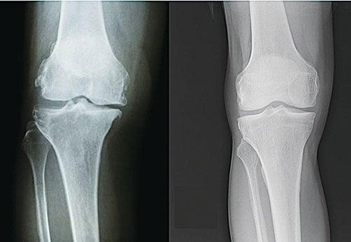 軟骨磨損的膝關節(左)和正常的膝關節(右)。(Shutterstock、Wikimedia Commons)