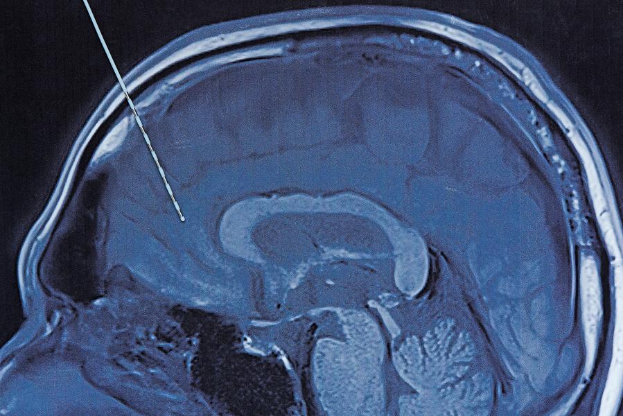 電極植入大腦或可喚醒深度昏迷