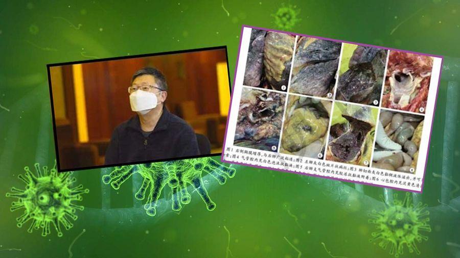 首例新冠死者解剖報告出爐 鍾南山吸氧療法被推翻