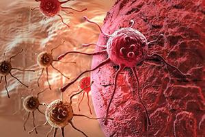 新方法首次看到癌細胞之間如何聯絡