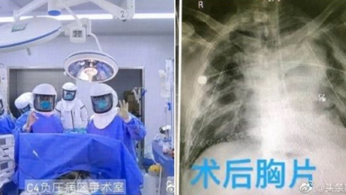 3月1日,中國首例中共肺炎病人進行雙肺移植手術的消息,引發外界質疑和批評。(網絡截圖)