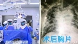 中共肺炎患者雙肺移植惹疑 主刀醫生早被國際追查