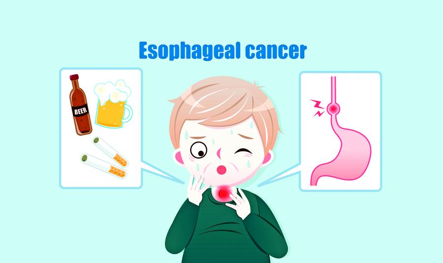 內視鏡技術燒灼癌細胞 早期食道癌免手術可治癒