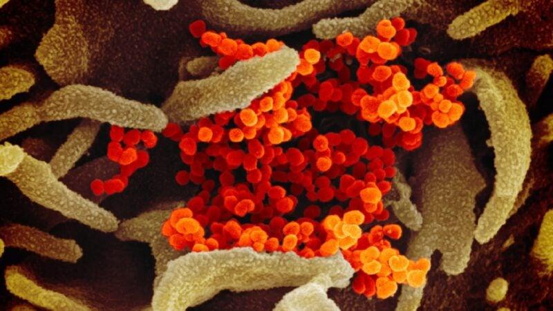 該掃描電子顯微圖像顯示了人類細胞中的中共病毒。(圖片來源:NIAID-RML)