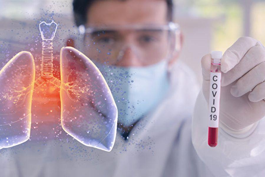 中央研究院3月8日宣佈,基因體中心研究團隊僅花費19天,成功合成對中共肺炎病毒具極佳單一辨識性的抗體。圖為示意圖。(大紀元資料室)