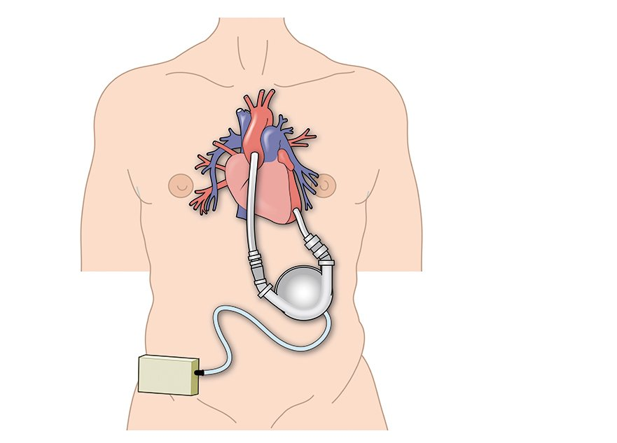 心室輔助器。