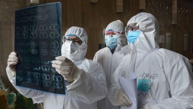 圖為中國湖北省孝感市雲夢縣的一家醫院的醫生2020年2月20日正在看中共肺炎患者的肺部CT片。(STR/AFP via Getty Images)