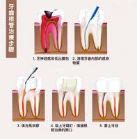 牙齒抽神經就「死」了嗎?  根管治療3問答
