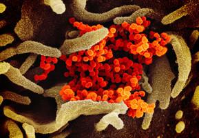 中共病毒起源最新三大說法 衛星圖像提示新線索