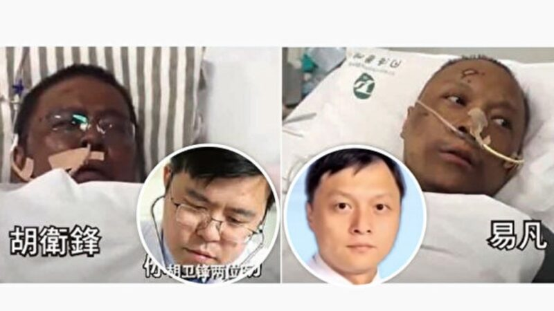 兩位醫師感染中共肺炎(武漢肺炎)後臉部發黑,疑是病毒造成肝功能受損所致。(視頻截圖)