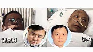 中共病毒患者特殊症狀:腳生水泡  男性腺受損