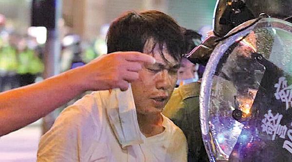 昨日旺角入夜後,警察繼續驅趕抗爭者。鄺俊宇議員到場了解,被警察暴力壓倒在地上,面部等處有明顯傷痕,其後被帶走。(網媒PSHK圖片)