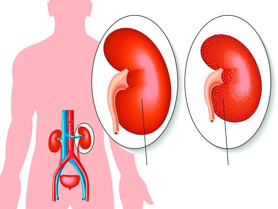 1.正常腎臟        2. 糖尿病腎病變腎臟萎縮 表面有顆粒狀