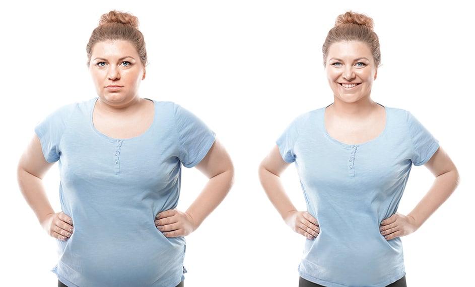 高階影像系統減重手術讓婦人重拾行走能力