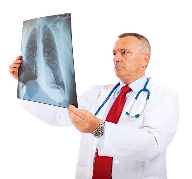 肺癌居癌症死亡首位初期無明顯症狀 重度吸菸者應每年定期篩檢