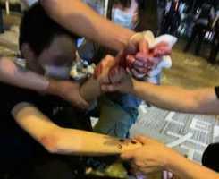 【現場視頻】大紀元記者直播期間被白衣人持刀襲擊 市民受傷