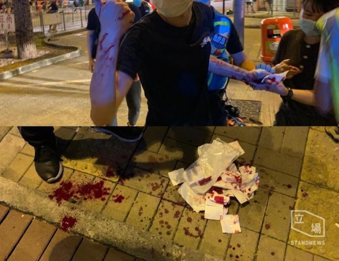 6 月 12 日晚上九時左右,香港大紀元記者在觀塘裕民坊直播報道街站活動期間,一名疑似中共「民建聯」順天區社區主任鄺星宇的白衣男子,亮出一把生果刀並指嚇其他市民。本報記者欲上前了解時,該白衣男子突以刀襲擊記者,一名香港青年人嘗試保護以手擋刀,受傷送院。圖為這位香港青年人現場受傷圖片。(網絡圖片)