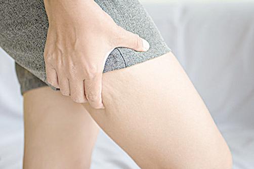 月經來了水腫變胖? 女中醫推薦消水腫運動和茶飲