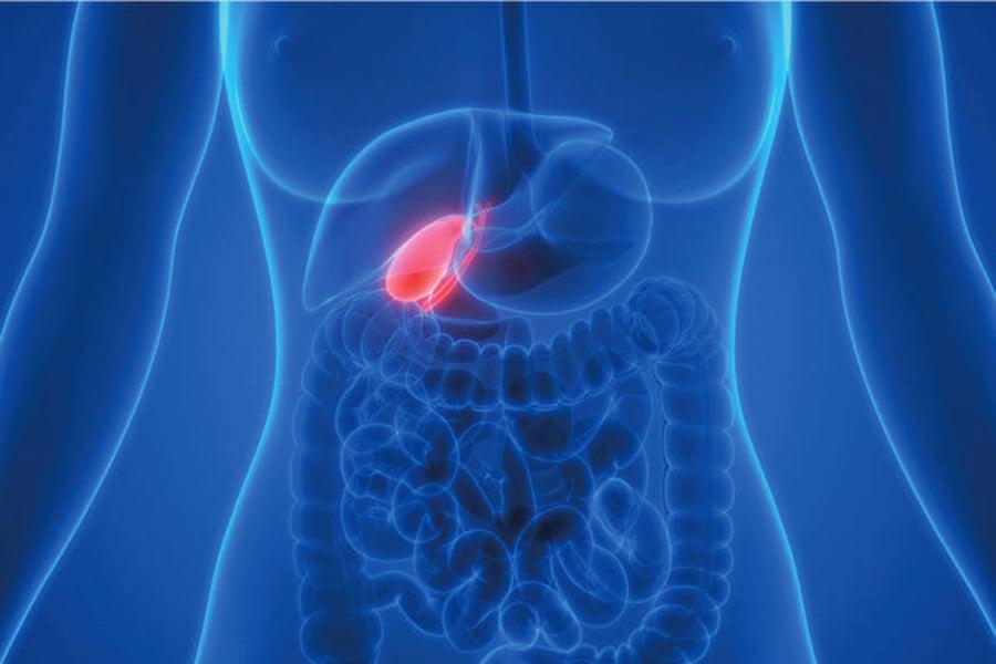 膽囊息肉會變成癌症嗎?哪些情況要切除