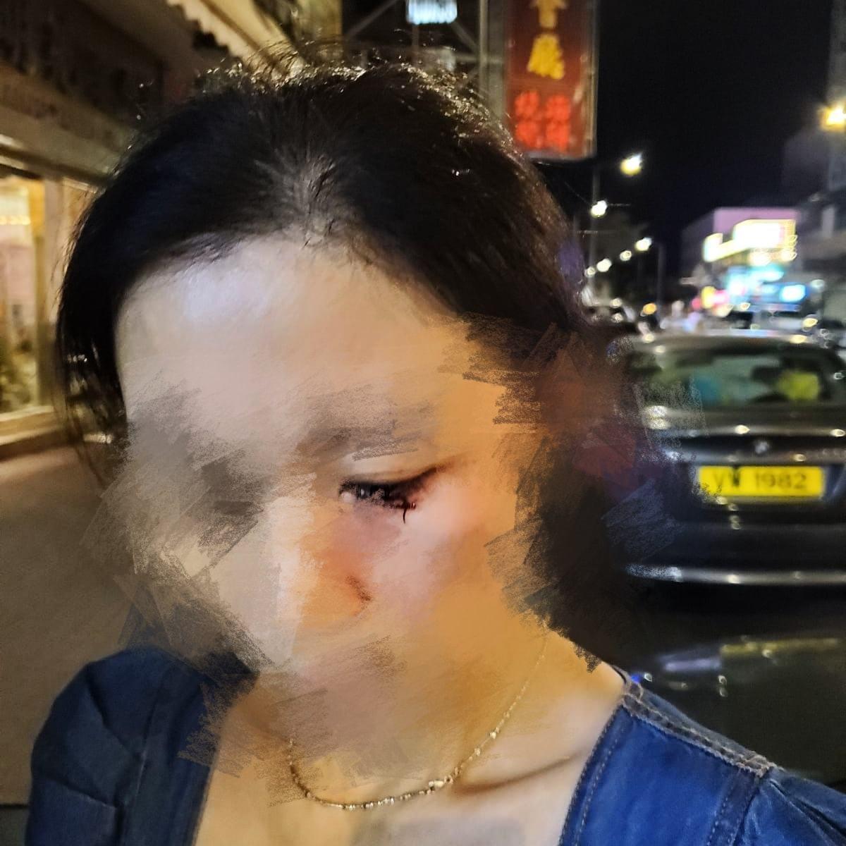 網上圖片顯示「亞玉冰室」老闆娘被襲擊後眼下出血。(網絡圖片)