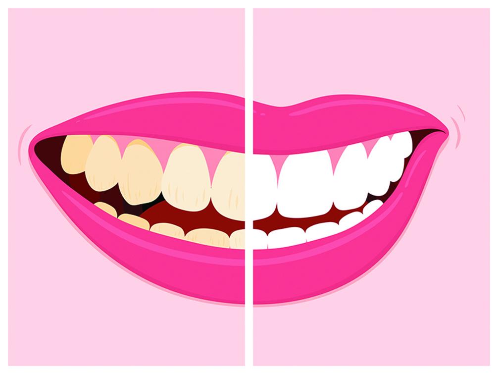 有多種方式能讓牙齒變得潔白。