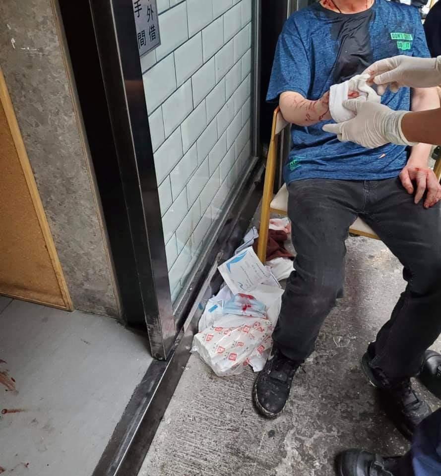 42 歲黃姓大廚昨晨遇襲,即時頭破血流,右手亦被玻璃碎片割傷。(龍門冰室Fb 截圖)