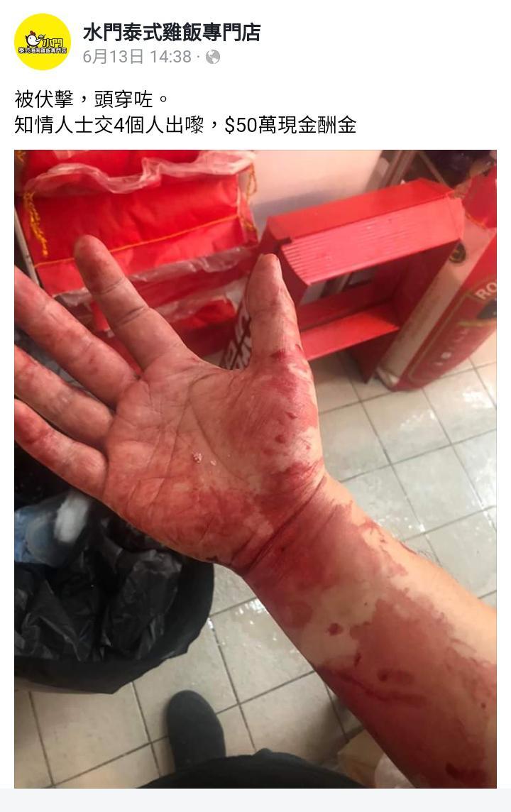 水門泰式雞飯專門店老闆早前於屯門遇襲,頭破血流。他更以 50 萬懸紅希望找出兇徒。(水門泰式雞飯專門店 Fb截圖)