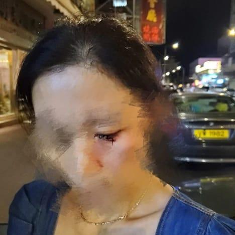 不久前的 6 月 28 日,亞玉冰室老闆一家三口亦於元朗下班之後遇襲,其中老闆娘的眼部微絲血管破裂,亦有不少瘀傷。(網上圖片)