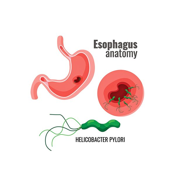 幽門螺旋桿菌是胃癌主要風險因子 3種檢查揪出致病元凶
