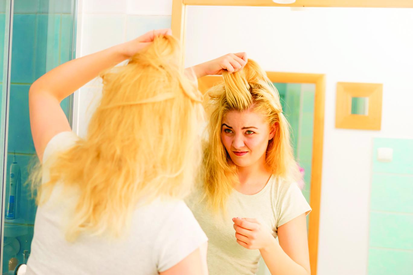 頭皮屑問題讓很多人感到困擾