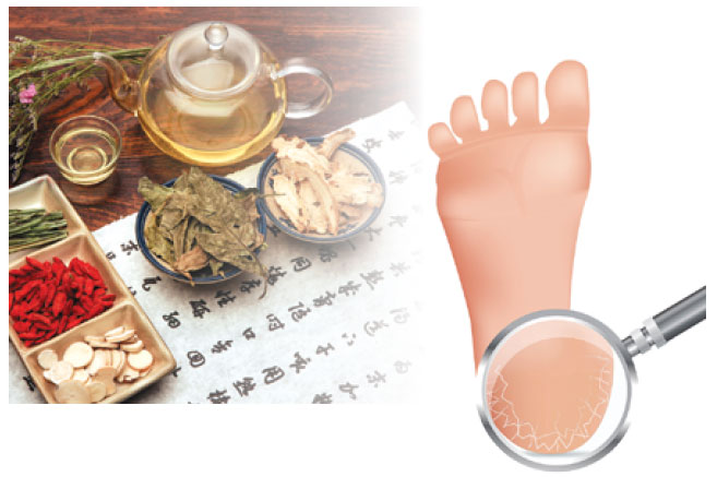 腳跟龜裂怎麼辦? 飲用中藥茶、果皮泡腳可改善