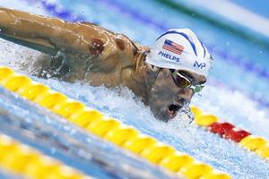 中醫「拔罐」成新時尚 美國奧運選手最熱衷