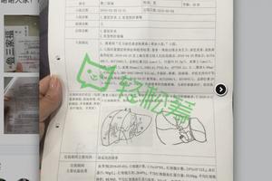 網曝「肝衰竭」患者上海華山醫院當天肝移植