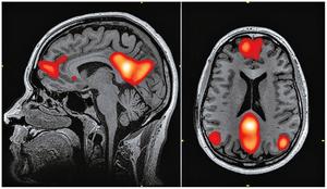 最新研究:核心道德價值觀根植人腦