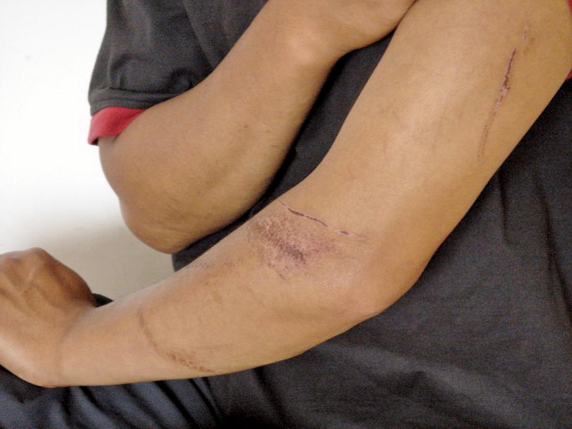 吉林省舒蘭市亮甲山鄉大法弟子王洪良於2001年7月被舒蘭市公安局刑警隊綁架,胳膊被不法警察撕打受傷,並被強制抽血化驗。(明慧網)