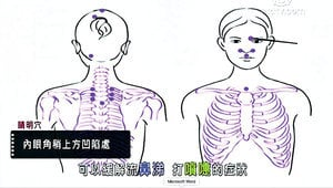 扁康療法系列講座 第九集 換季的不速之客:鼻炎(下) 清肺熱 拔除鼻炎的病根