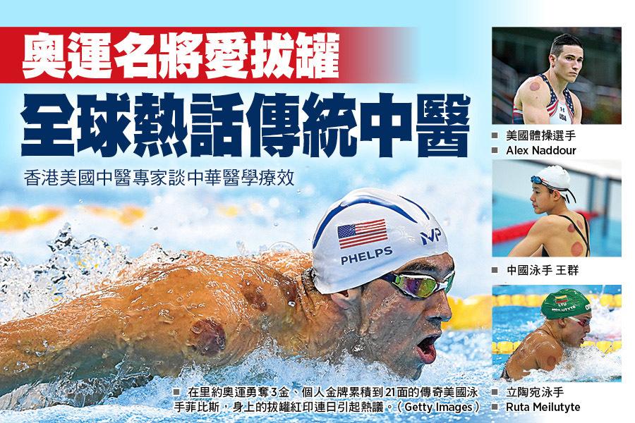 在里約奧運勇奪3金、個人金牌累積到21面的傳奇美國泳手菲比斯,身上的拔罐紅印連日引起熱議。(Getty Images)