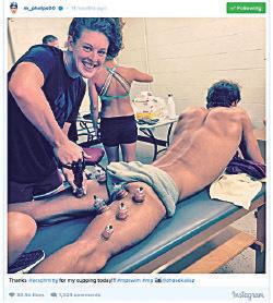 █ 菲比斯在Instagram貼出進行拔罐的照片。(菲比斯Instagram)