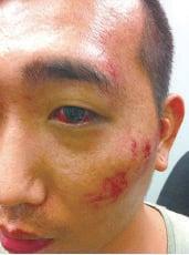市民傘運被警打傷 獲賠近20萬