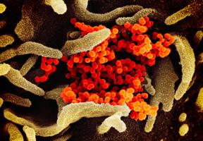 全球中共病毒單日確診破五十萬  歐洲疫情急劇惡化