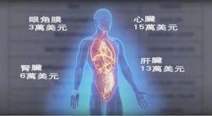 金楓:黑心醫生偷器官搶黨的錢 中共輕判警告