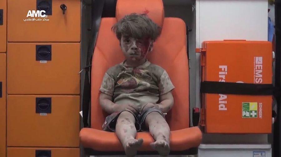 敘利亞遭空襲 獲救男童模樣令人心痛