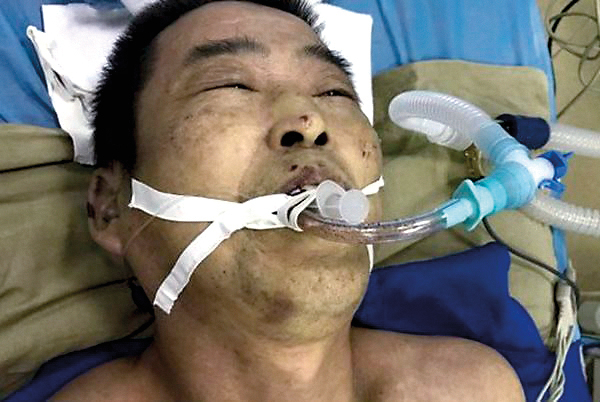 中共百種酷刑:對男性公民的性摧殘