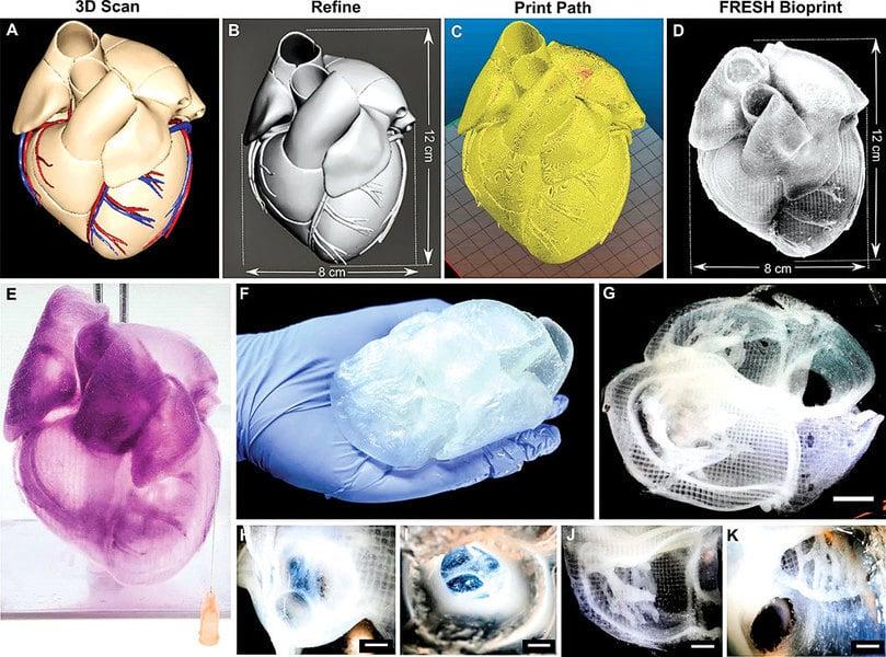 外科醫生的新工具:三維打印心臟誕生