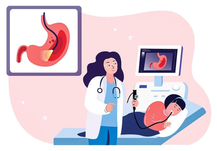 每年健檢未做胃鏡檢查 竟是走向胃癌的誤區