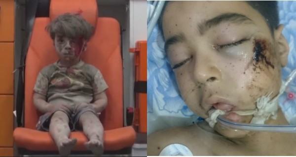 空襲敘童的哥哥走了 戰爭殘酷現實誰來關注